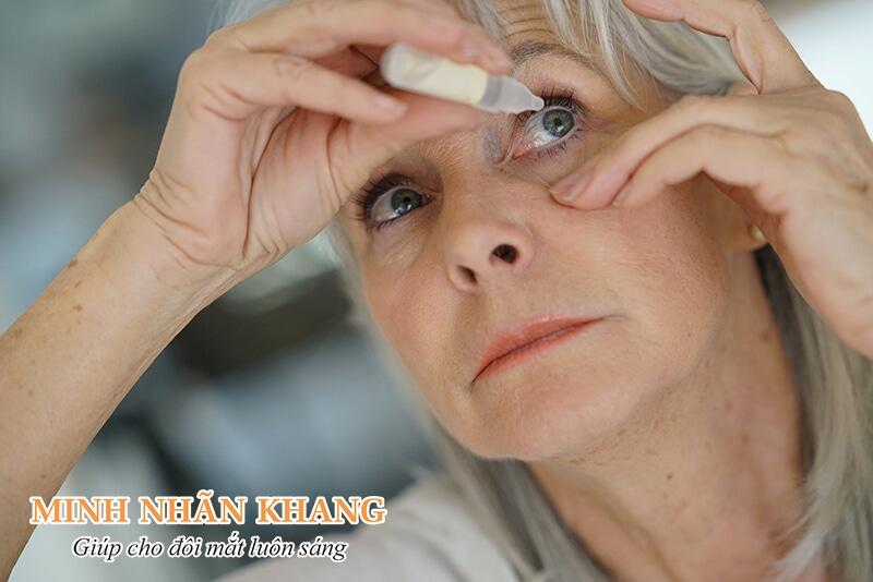 Thuốc nhỏ mắt thường có tác dụng tại chỗ, hiệu quả đáp ứng nhanh